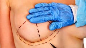 Docteur Robert Zerbib chirurgien Paris 16 75116 75016 Seins Prothese mammaire