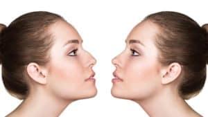 Docteur Robert Zerbib chirurgien Paris 16 75116 75016 Visage Profiloplastie genioplastie rhinoplastie chirurgie du menton chirurgie du nez paris