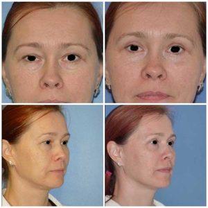 docteur robert zerbib chirurgie plastique chirurgien esthetique paris 16 75116 blepharoplastie chirurgie des paupieres chirurgie des yeux operation des yeux regard 4