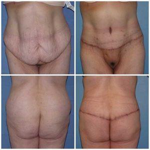 docteur robert zerbib chirurgie plastique chirurgien esthetique paris 16 75116 chirurgie esthetique du corps silhouette body lift bodylift paris 16