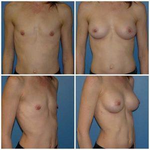 dr robert zerbib chirurgie plastique chirurgien esthetique paris 16 75116 chirurgie esthetique des seins augmentation mammaire par protheses mammaires paris 16 20