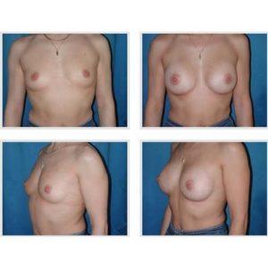 dr robert zerbib chirurgie plastique chirurgien esthetique paris 16 75116 chirurgie esthetique des seins augmentation mammaire par protheses mammaires paris 16 33